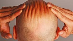 Neue Wege bei Haarausfall